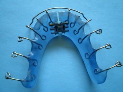 Eine blaue Spange vorbereitet zur Zahnspangenreinigung